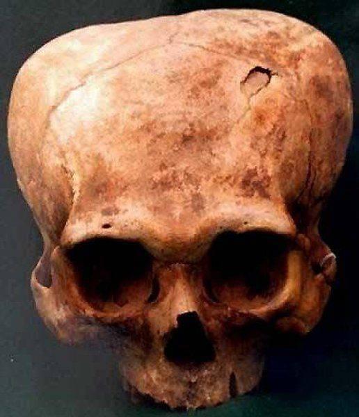 Celowe deformacje czaszek 14