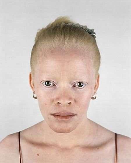 Czarnoskóry albinos !?! 9